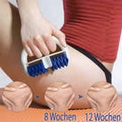 Lunata® Anti Cellulite Massage Roller, Massagebürste gegen Orangenhaut, Cellulite Massagegerät