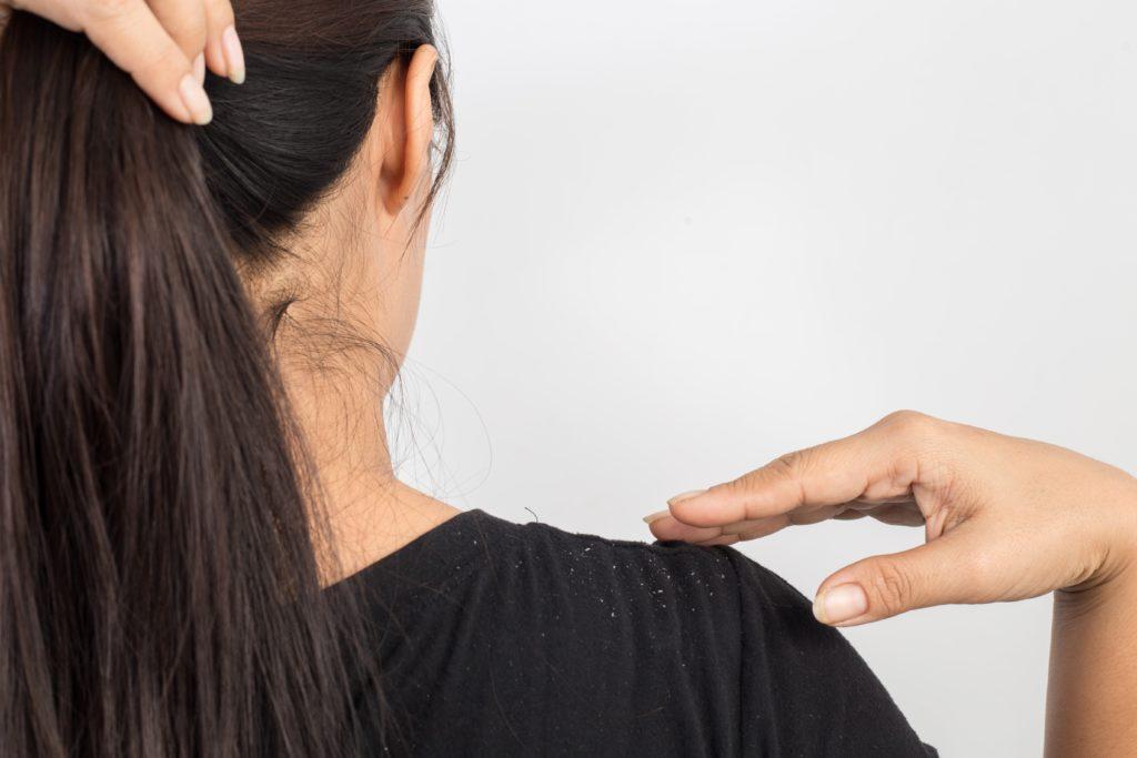 Hausmittel Gegen Schuppen 14 Tipps Die Wirklich Helfen