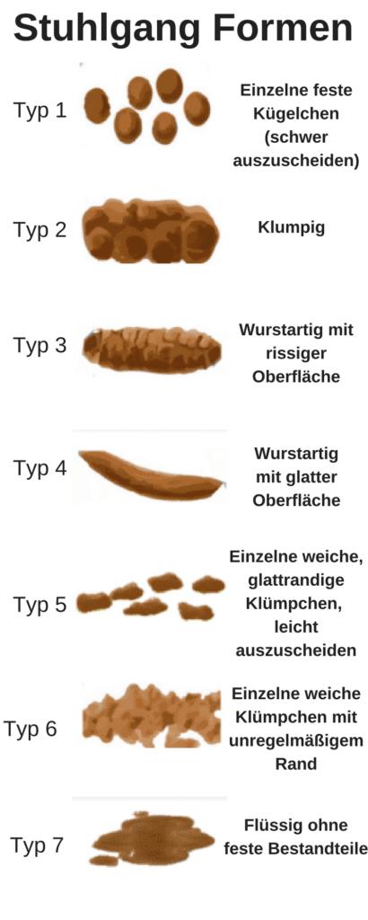 Grünlicher Stuhlgang Grüner Schwarzer Gelber Stuhlgang Farben